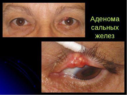 adenóma tünetei Parahrine fájdalom a prosztatarákkal