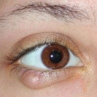 Zapalenie typów oczu, przyczyny, leczenie w domu