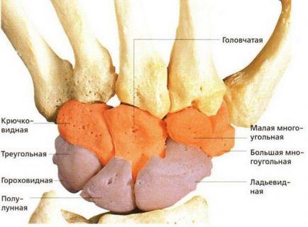 leczenie choroby Kienbock, objawy i diagnostyka
