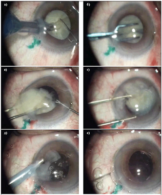 Leczenie zaćmy po wymianie Wybór soczewki sztucznej soczewki przywrócenie wzroku