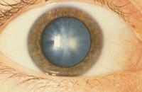 Zaćma nowoczesne terapie, choroby oczu (okulistyka), zaćma