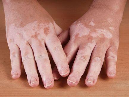 leczenie bielactwa zdjęcia objawy że choroba, przyczyny