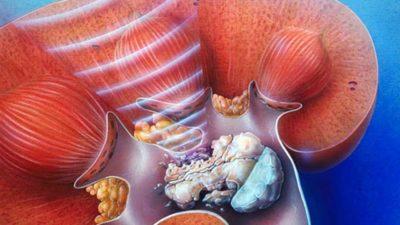 laparoszkópos vesekő eltávolítás Milyen népi jogorvoslatok segítenek a prostatitisben