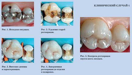 O kompozytowych uzupełnień nowoczesnej stomatologii artykuły medycyna