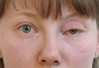 Powikłania po Blepharoplastyka powiek obrzęk, wywinięcie, blizny, blizny