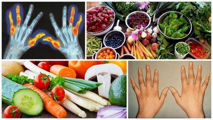 Étrendi ajánlások rheumatoid arthritis esetén - Ízületi fájdalom fehérje diéta
