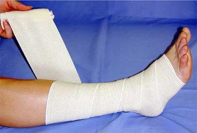 Hogyan kell használni a rugalmas kötést visszér, Kompressziós kezelés