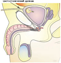 Anti inkontinencia (TOT) műtét