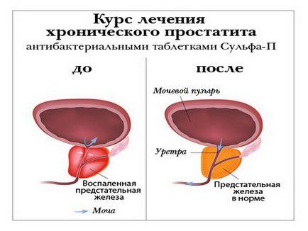 Krónikus prosztatitis szakaszai)