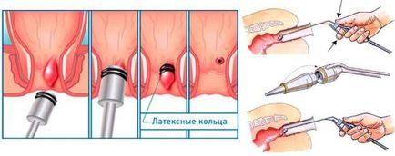 Hemoroidy w czasie ciąży niż można traktować opinie domowych