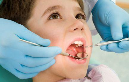 Jak leczyć przetokę na dziąsła po ekstrakcji zębów i resekcji korzenia głównego
