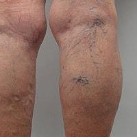 tratamentul cu membrele inferioare varicoase cu lipitori)