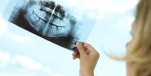 dentystyczne rentgenowskie w czasie ciąży - czy to możliwe, aby zrobić zdjęcie z wczesnych stadiach