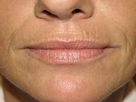 Az ajkak körüli ráncok eltávolítása