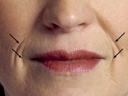 hogyan lehet eltávolítani az ajkak körüli zsírt