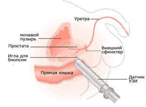 prostata dimensiuni normale ecografie)