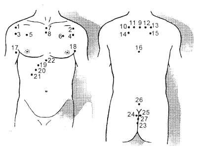 Гірудотерапія при захворюваннях дихальних шляхів
