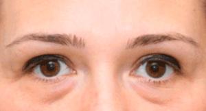 cum să eliminați rapid oboseala ochilor)