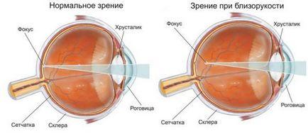 Metode de restabilire a vederii în miopie - Miopie - Chirurgie pentru restabilirea miopiei vederii