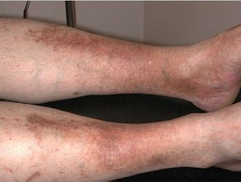 petele de pigment pe picioare în varicoză)