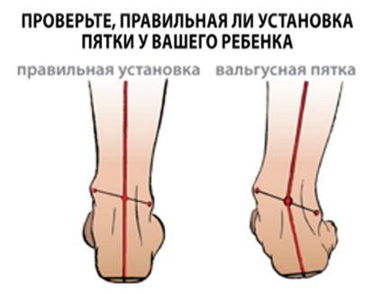 Вальгусна деформація стопи - види, симптоми, методи лікування