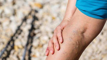 vehicul ieftin varicose recenzii recuperarea după îndepărtarea picioarelor varicoase
