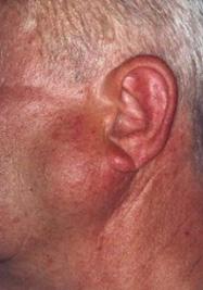 Злоякісні пухлини органів травлення - причини, симптоми і лікування