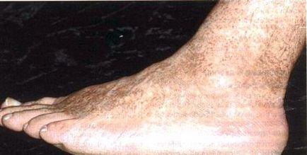 pigmentarea pielii pe picioare în varicoză cum să tratați venele varicoase interne prin remedii populare
