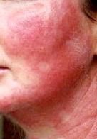 AnsellCARES – Allergiák – Kontakt-dermatitisz, vegyszer- és latexallergia