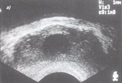 A prosztatitis lézeres kezelése Ha nincs fájdalom a prostatitisben