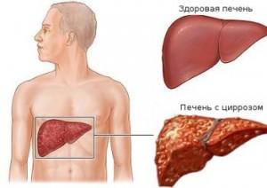 Jak zachować zdrową wątrobę przez długie lata