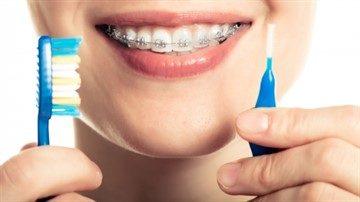 Зубна щітка для брекетів - яку краще купити для чищення та догляду за  порожниною рота 61aa86e37f6a2