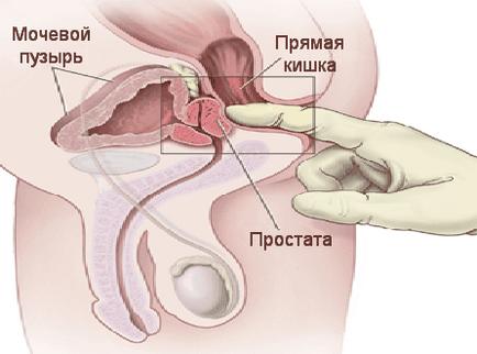 orvosi prosztata masszázs