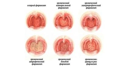 Фарингіт у дітей симптоми і лікування, профілактичні заходи