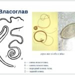 Власоглав людський симптоми, лікування і фото паразита