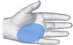 Marskość wątroby (zażółcenie skóry ciała, twardówka oczu, swędzenie)