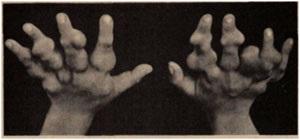 Дисхондроплазії (хвороба Олье)