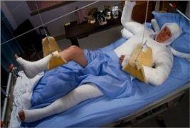 Перелом, симптоми і лікування перелому