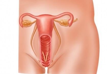 Тріхомонадний вульвовагініт як уникнути рецидивів інфекції