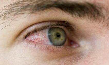 paraziți în ochii oamenilor