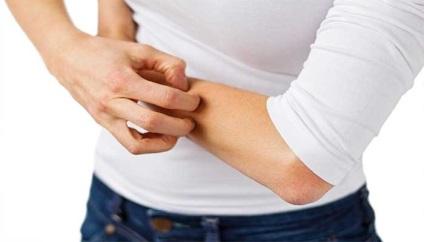 Алергія на укуси комах лікування, фото