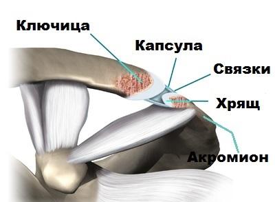 artroza articulației acromioclaviculare)
