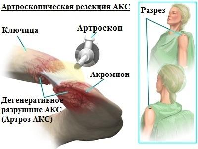artroza acromioclaviculară a articulației umărului