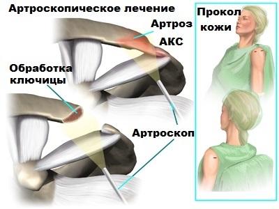 artroza acromioclaviculară a articulației umărului)