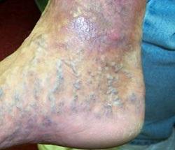 pigmentarea de la varicoseza