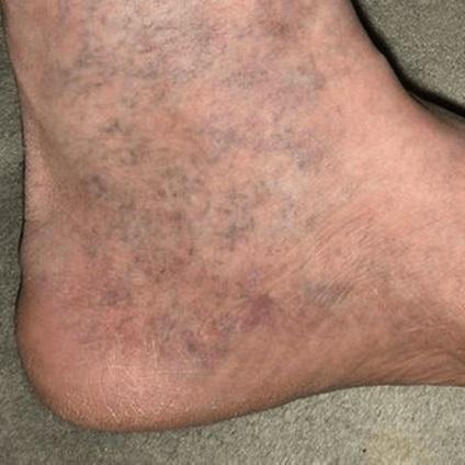 Перші симптоми варикозу