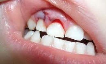 Uszkodzenie klasyfikacji zranień urazów, objawów, pierwszej pomocy, leczenia