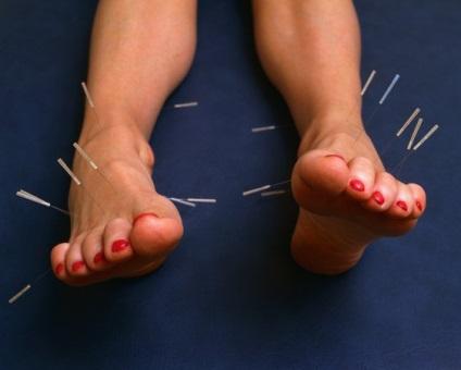 Tratăm varice puncte de acupunctură
