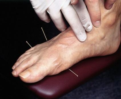 puncte de acupunctură cu vene varicoase