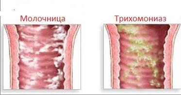 befolyásolhatja e a Trichomonas a hatékonyságot)